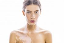 Vitiligo, causas, síntomas, tratamiento homeopático